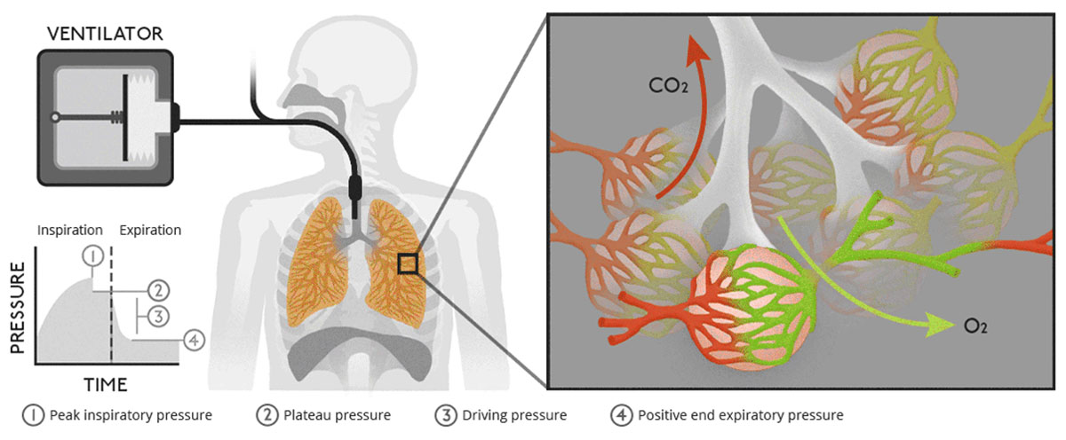 animated interactive infographics - explaining ventilators covid-19